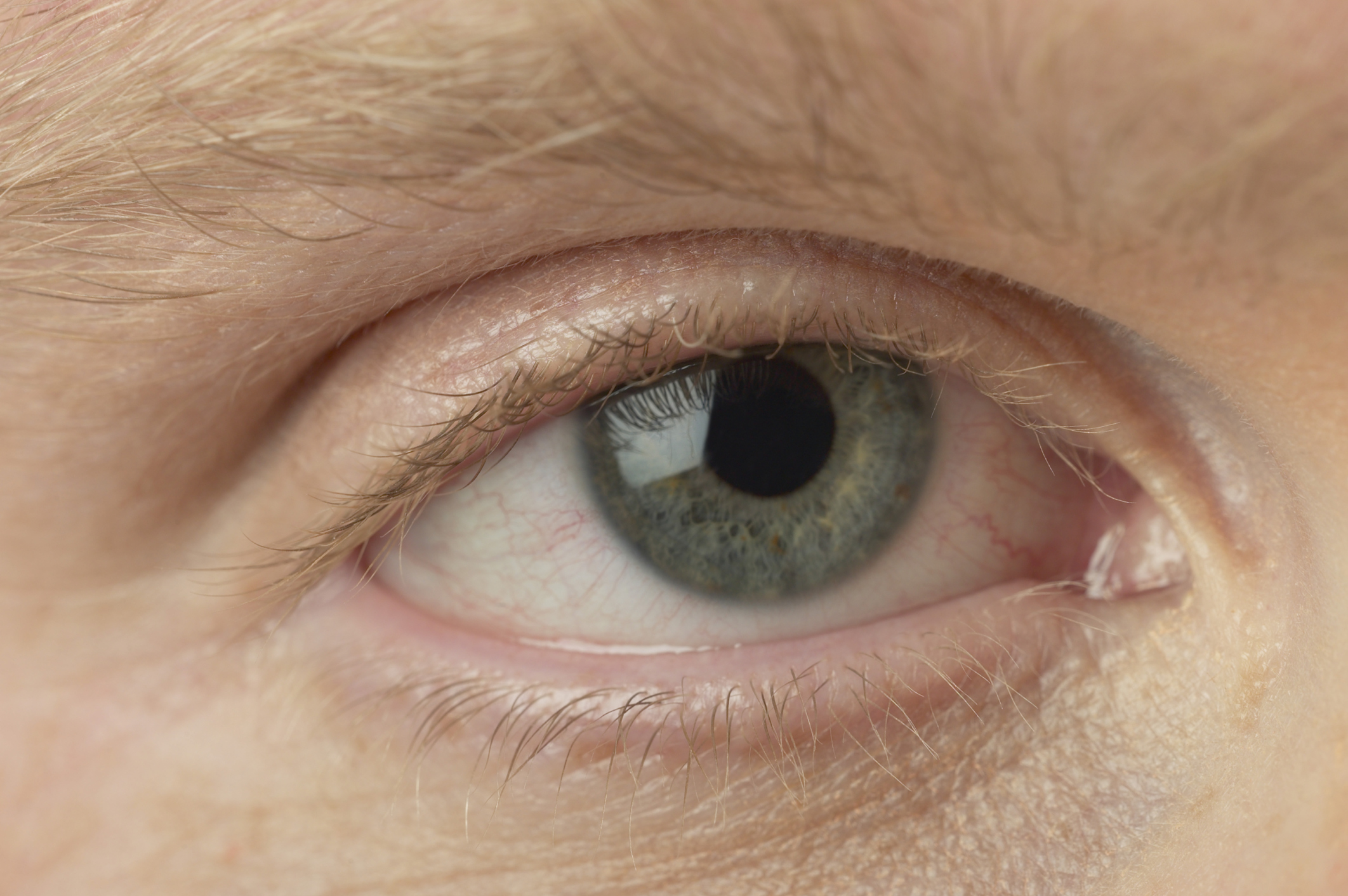 hpv in your eye