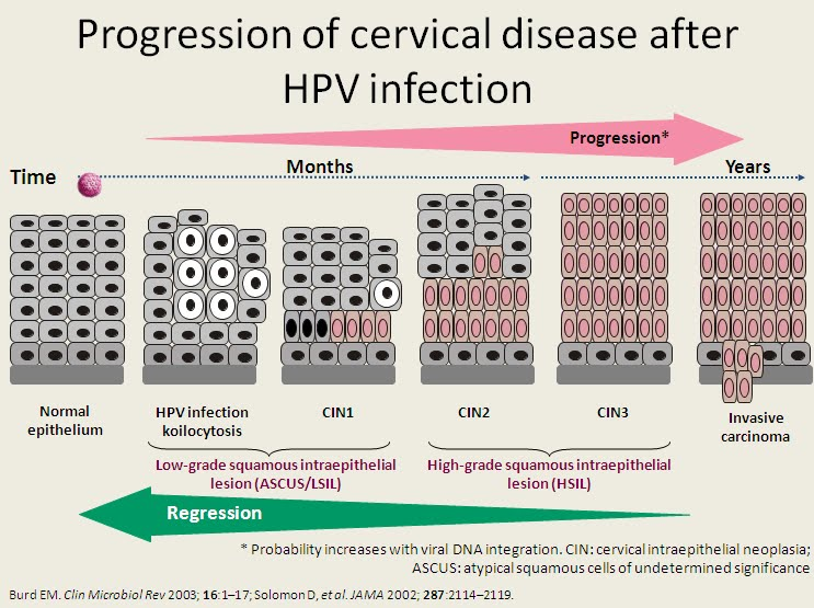hpv infection to cervical cancer)