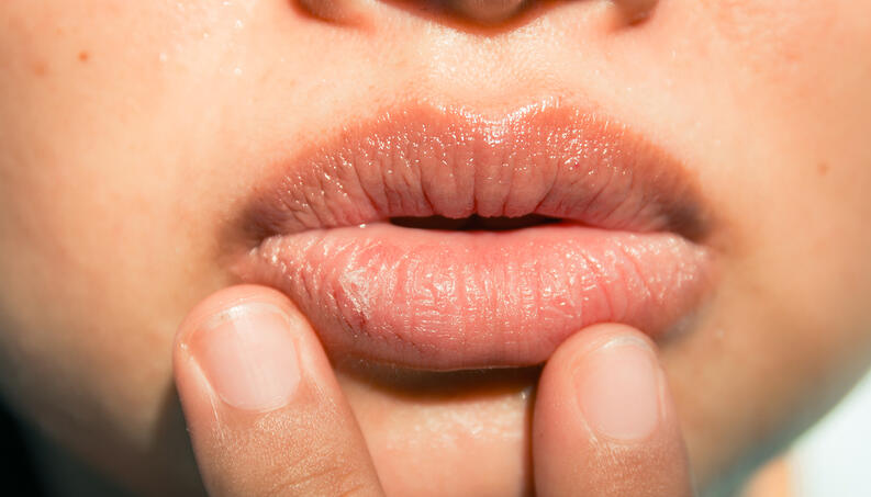 hpv mouth and