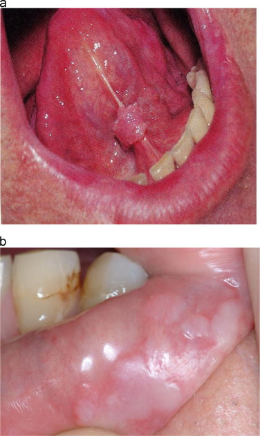 hpv skin tags under tongue