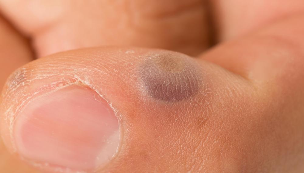 hpv warts blister)