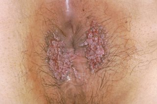 hpv warts never came back)