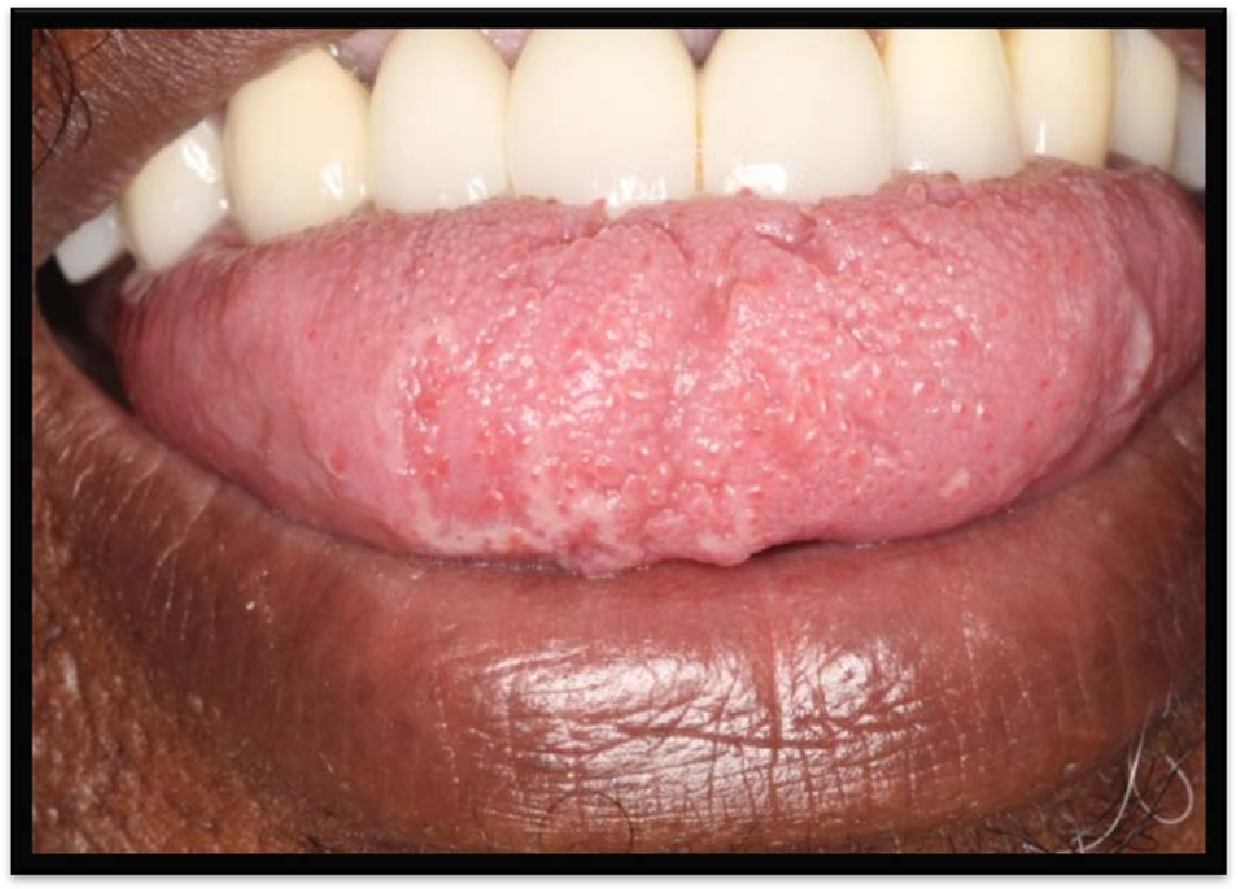 human papillomavirus in the mouth pictures)