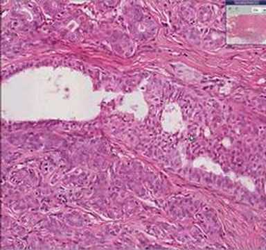 intraductal papilloma with epithelial hyperplasia