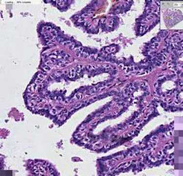 intraductal papillomatosis pathology