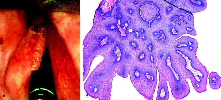 laryngeal papillomatosis newborn hpv cancer of the tonsils