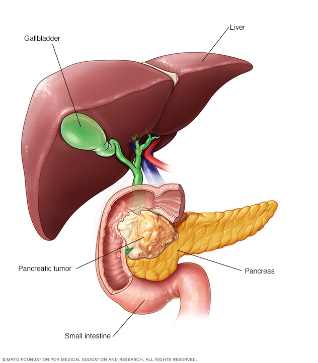 pancreatic cancer from pancreatitis