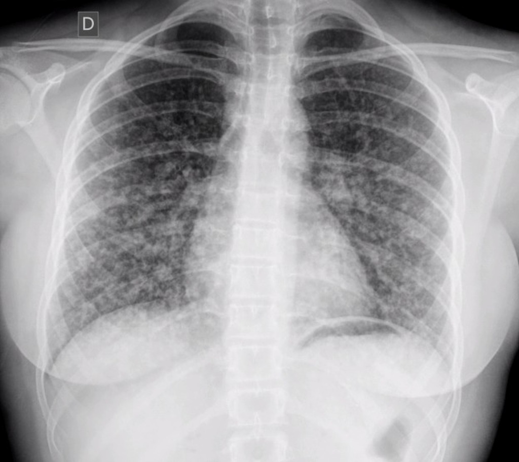 papillary thyroid cancer spread to lungs
