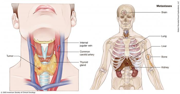 papillary thyroid cancer stage 4)