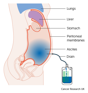 peritoneal cancer genetic)