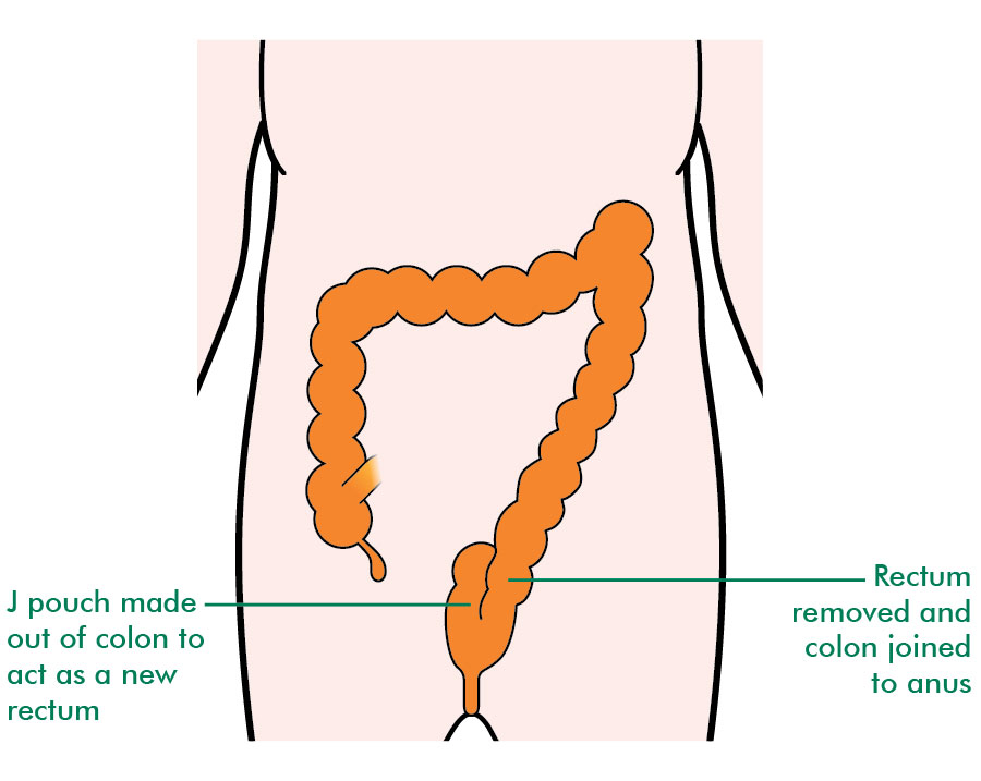 rectal cancer resection)