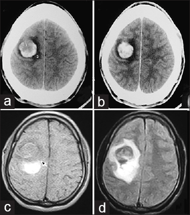 testicular cancer with brain metastases
