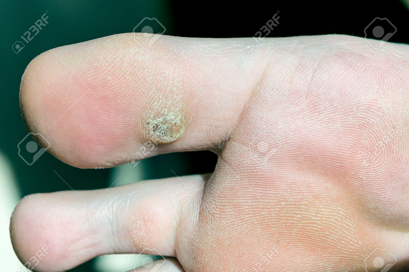 wart foot black)