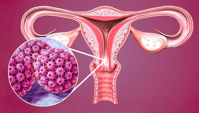 what is hpv virus and how do you get it virus papiloma humano como se contagia